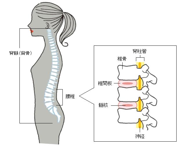 腰痛 前 に かがむ と 痛い 原因