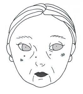 筋膜リリース-ill